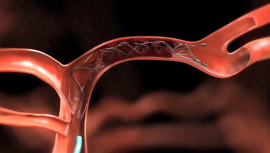 6 признаков, что у вас может быть тромб