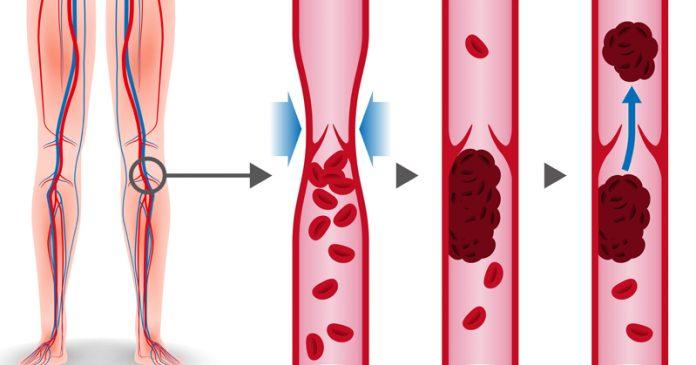 Причины, симптомы и 5 природных методов лечения тромбоза глубоких вен