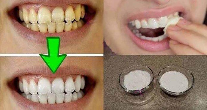 Отбеливайте свои желтые зубы менее чем за 2 минуты