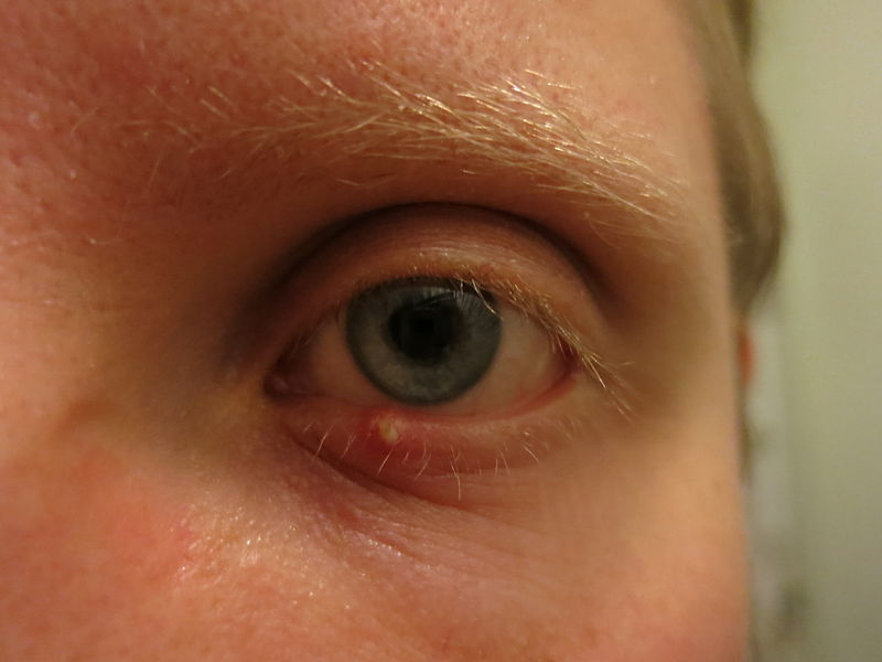 8 признаков, посредством которых Ваши глаза пытаются предупредить Вас о проблемах со здоровьем