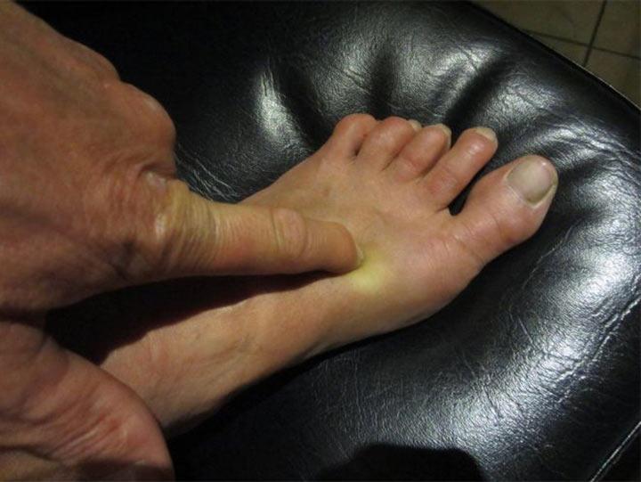 Особая точка на ноге избавит вас от бессонницы. Чудеса акупунктуры!