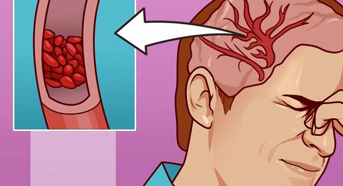 12 симптомов смертельно низкого уровня магния в организме