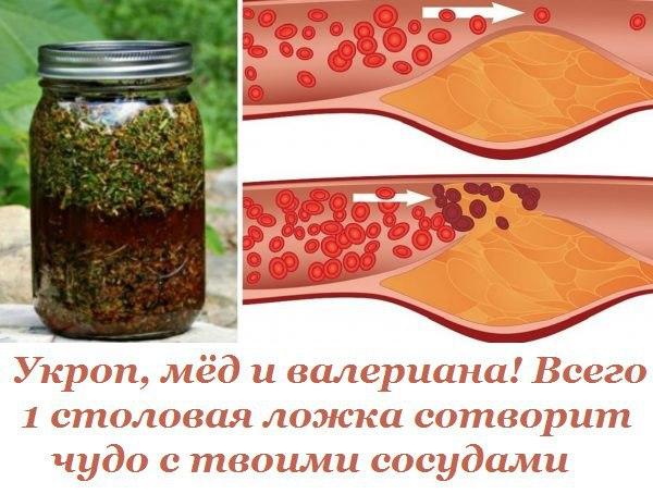 Укроп, мёд и валериана! всего 1 столовая ложка сотворит чудо с твоими сосудами.