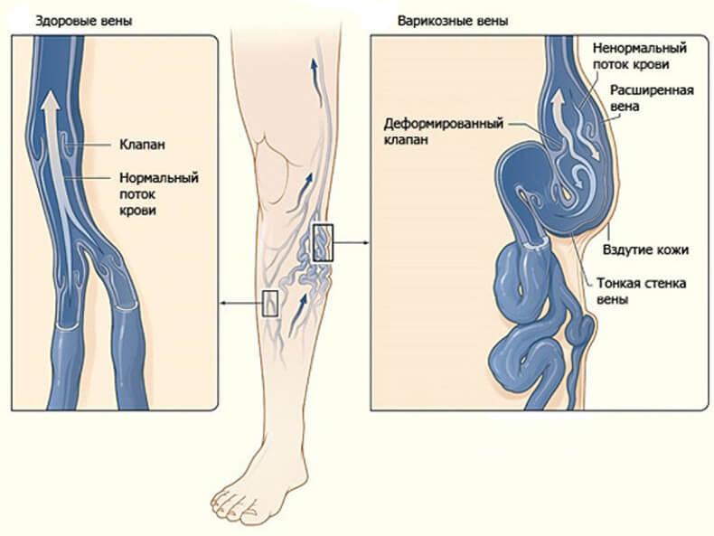8 упражнений против варикоза