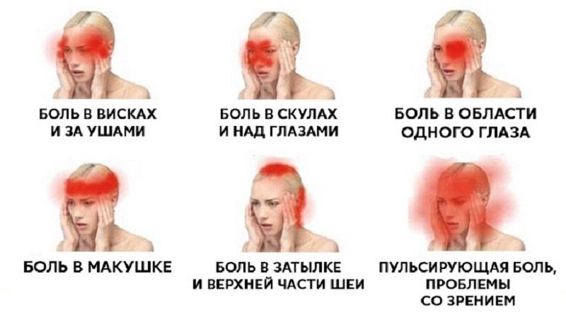 Врачи настоятельно говорят: какие виды головной боли нельзя терпеть, 6 типов
